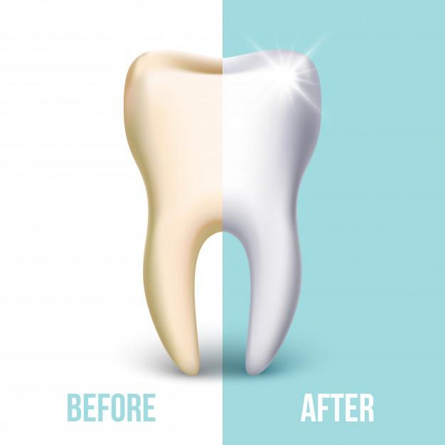 dental veneer teeth whitening concept stomatology healthcare white tooth illustration