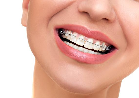 Orthodontics-treatmen