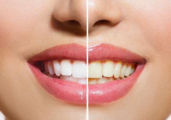 Teeth-Whiting