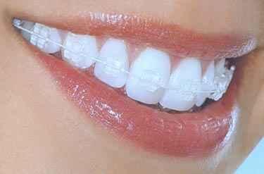 Best Teeth cure in Frisco TX