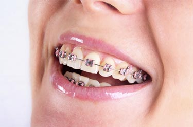 Braces and Teeth whitening treatment in Frisco TX