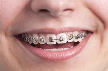 Braces Treatment For Teeth in Frisco TX