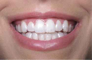 Braces Treatment with Low Cost in Frisco TX