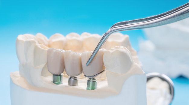 close-up-implan-model-tooth-support-fix-bridge-implan-crown_