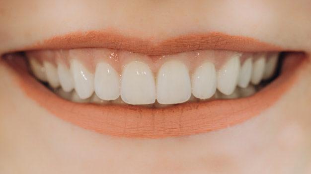 finished-ceramic-front-crowns-8-units-dental-veneers
