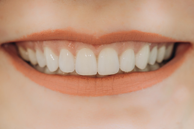 finished-ceramic-front-crowns-8-units-dental-veneers